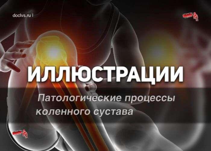 Иллюстрация патологии коленного сустава