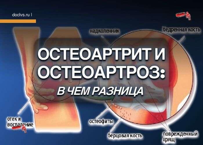 Остеоартрит и остеоартроз: в чем разница
