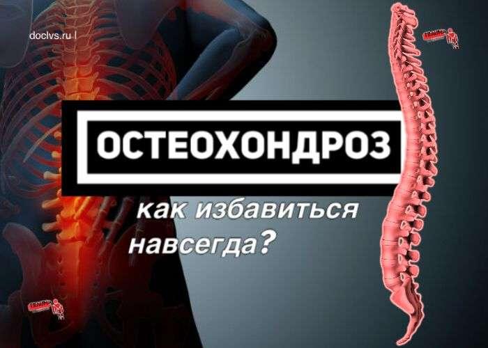 Остеохондроз