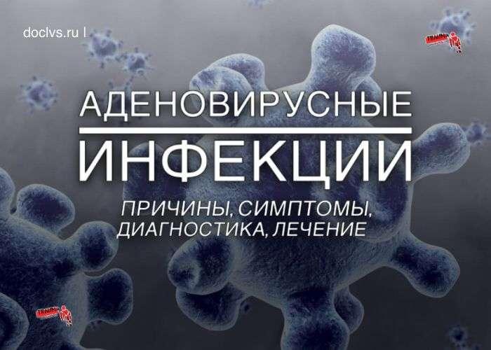 Аденовирусные инфекции