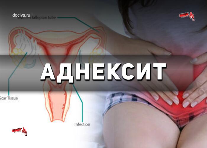 Аднексит