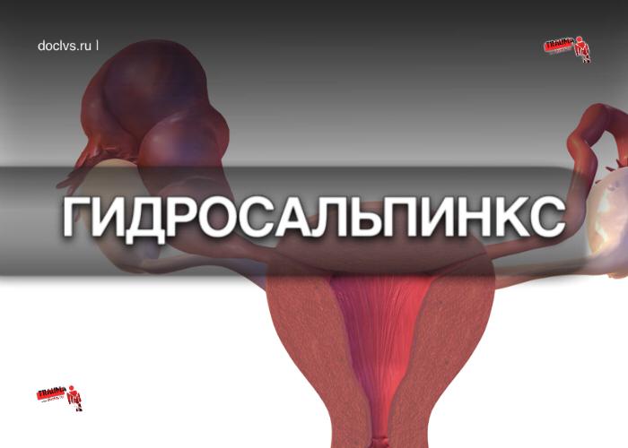 Гидросальпинкс