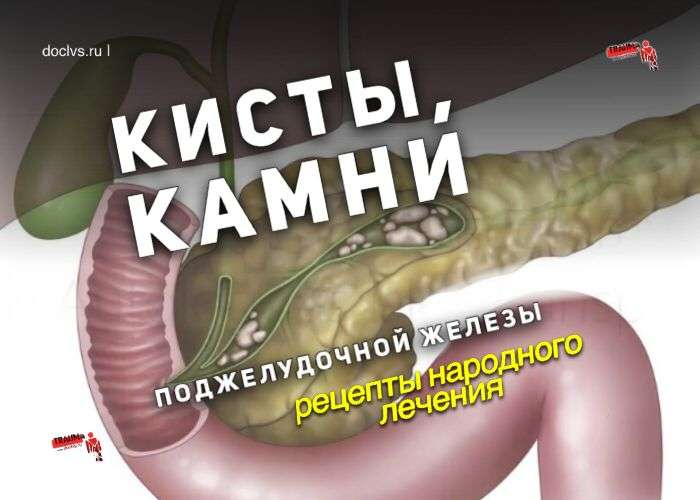Кисты, камни поджелудочной железы: рецепты народного лечения