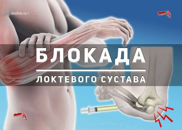 блокада локтевого сустава