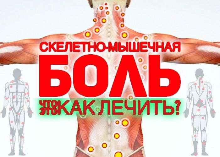 скелетно-мышечная боль