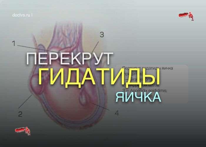 перекрут гидатиды яичка