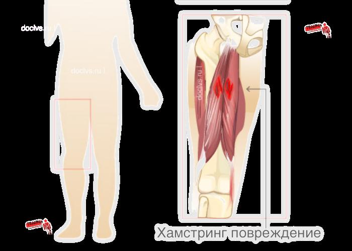 Хамстринг-синдром (Hamstring syndrome)