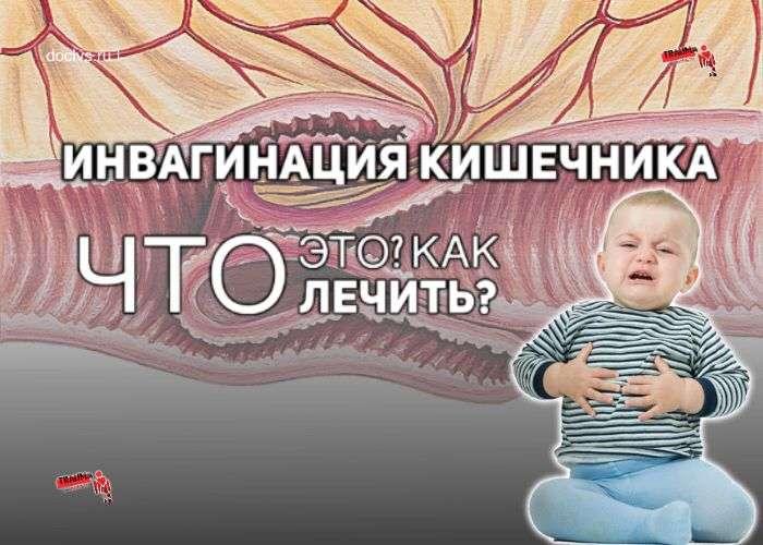 Инвагинация кишок (ИК) у детей