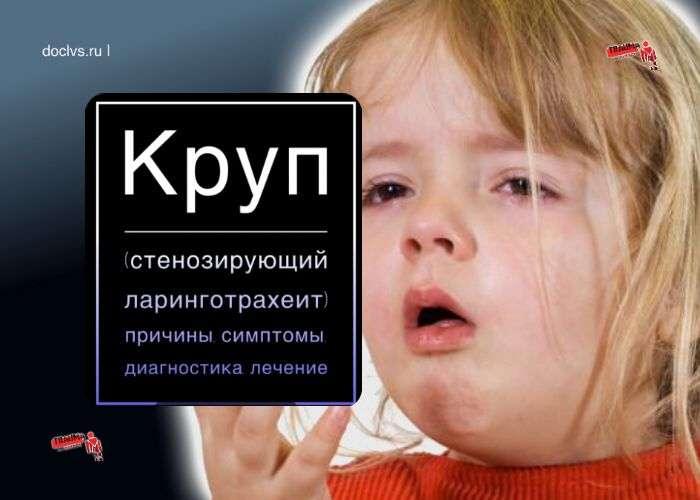 Круп (стенозирующий ларинготрахеит) у детей