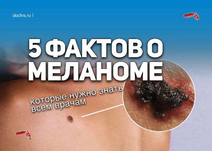 меланома
