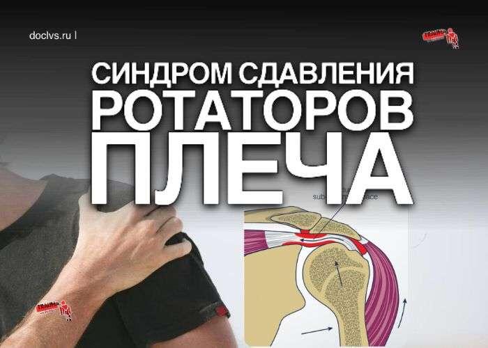синдрома сдавления ротаторов плеча (ССРП)