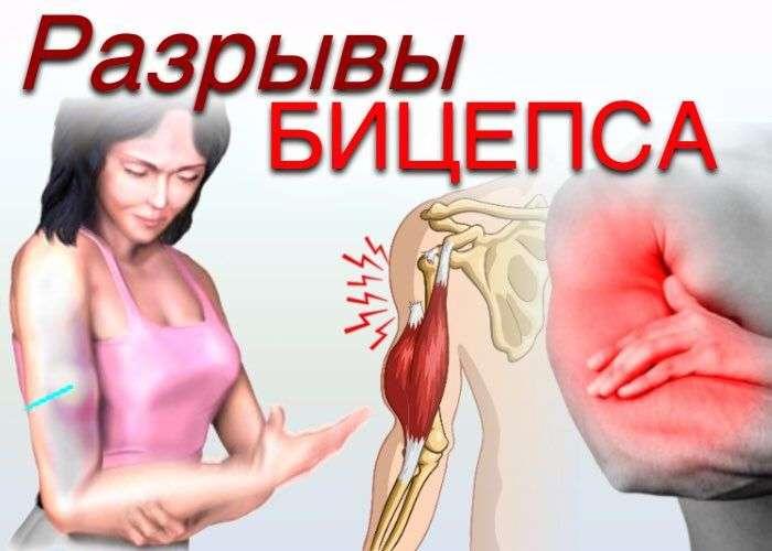 Разрыв сухожилия длинной головки двуглавой мышцы плеча
