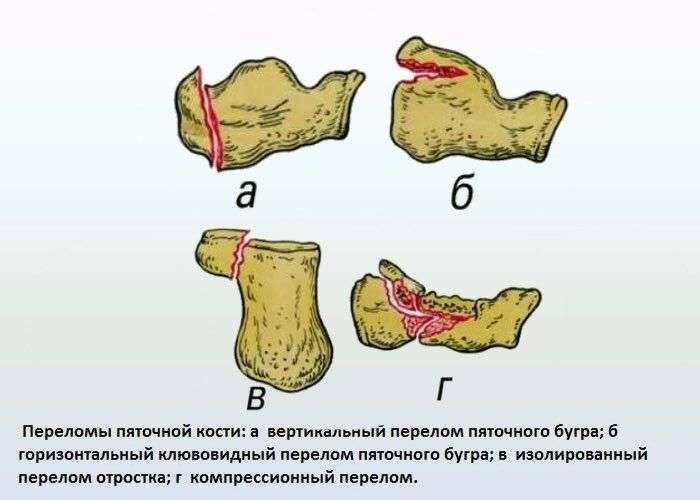 Перелом пяточной кости сколько заживает