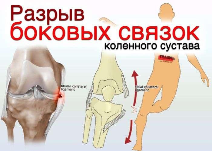 Разрыв боковых связок коленного сустава