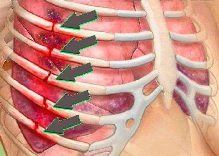 Чем лечить сломанные ребра в домашних условиях