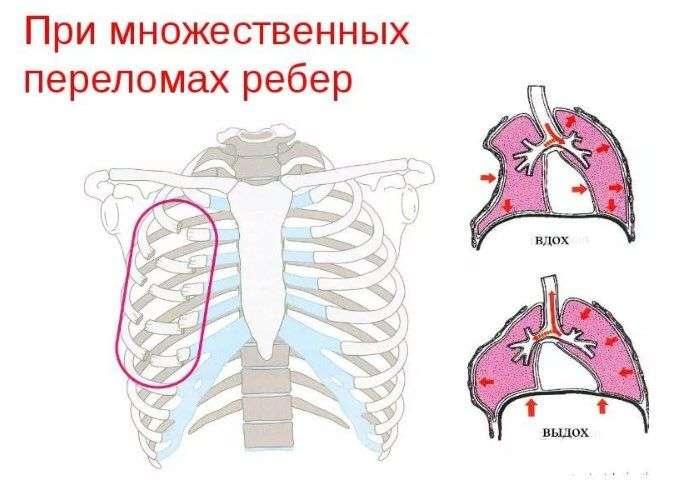 Лечение перелома ребра в домашних условиях