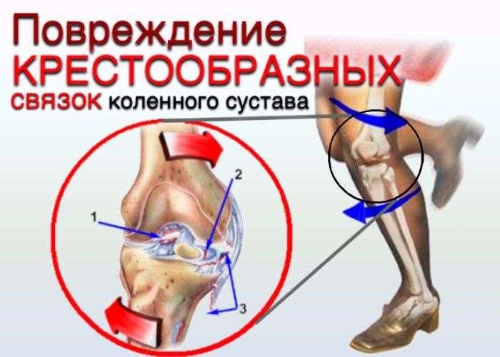 Коленный сустав диагностика повреждений болят суставы коленей лечение врач