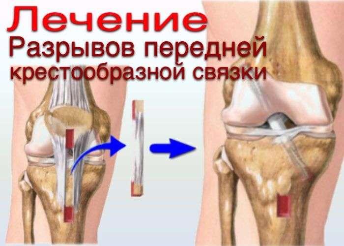 Разрыв передней крестообразной связки, гемартроз коленного сустава околосуставное обкалывание хондропротекторами