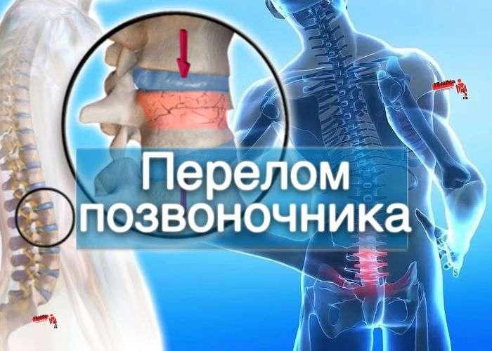 Перелом позвоночника - статистика, диагностика, лечение компресионных переломов