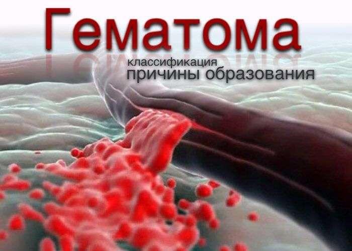 гематома