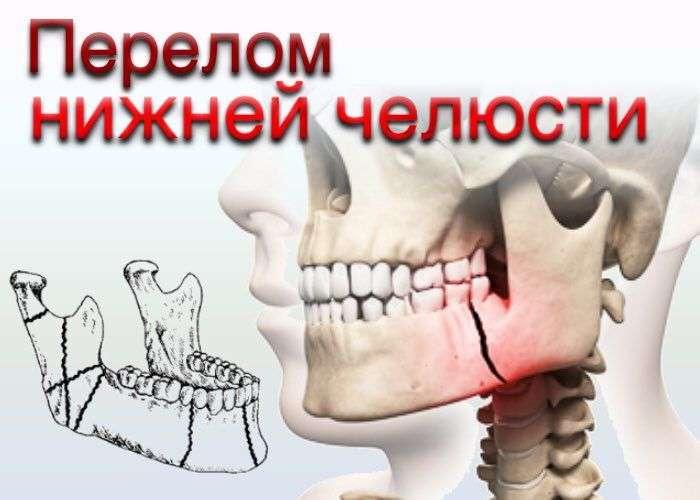 Шунтирование челюсти