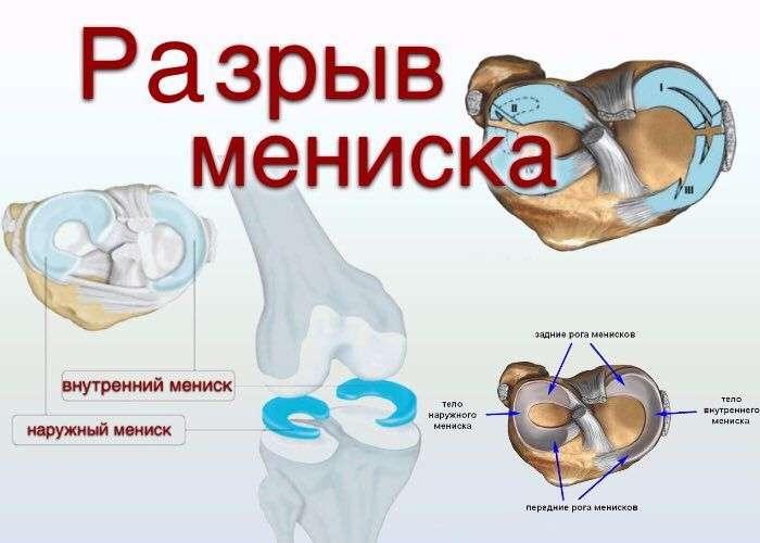 способы лечения мениска коленного сустава