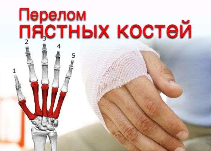 Перелом диафиза пястной кости