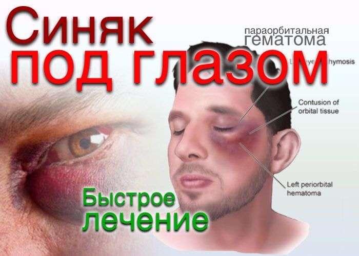 Синяк глазом лечение в домашних условиях 325