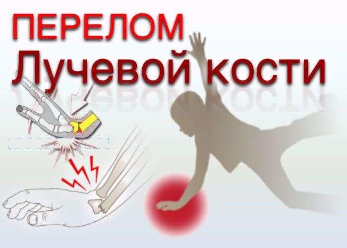Перелом дистального метаэпифиза лучевой кости (перелом лучевой кости «в типичном месте»): симптомы, диагностика, лечение в ЦКБ РАН