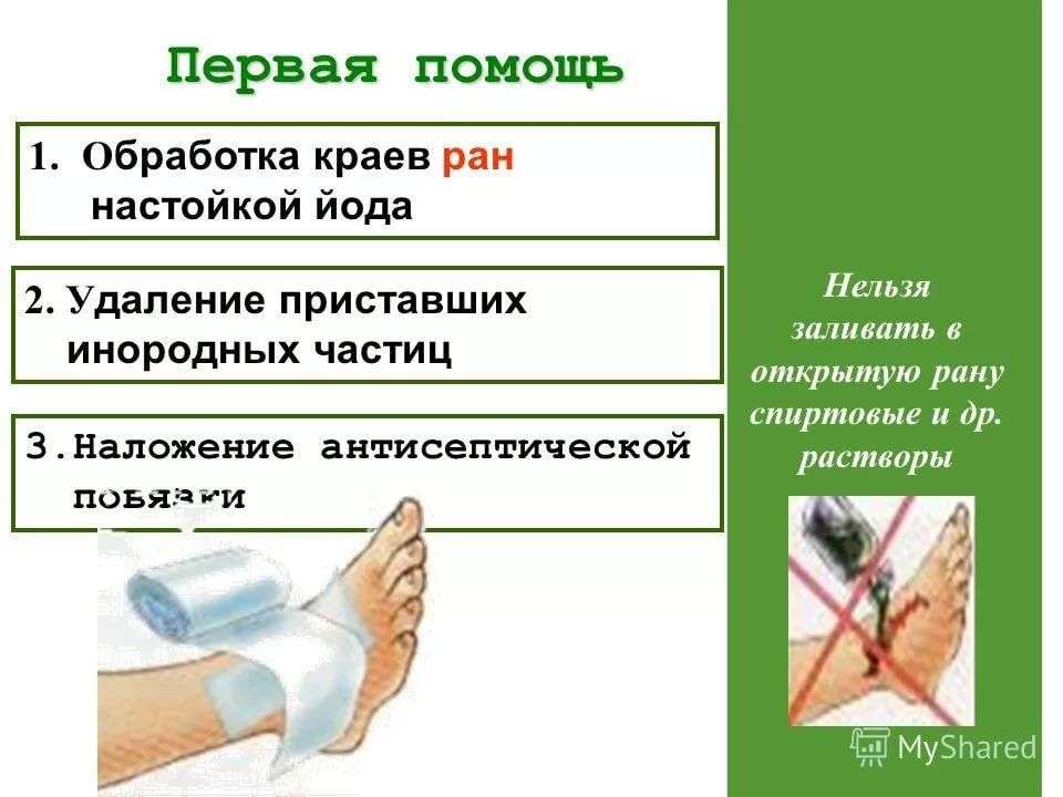 Как в домашних условиях обезболить рану 410