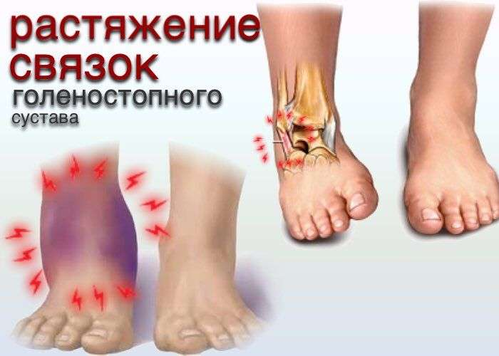 Лечение растяжения ноги в домашних условиях