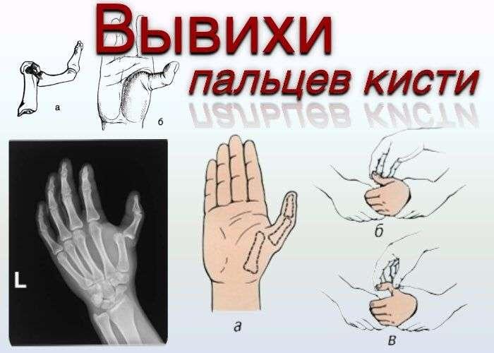 Вывих пальца как лечить в домашних условиях 767