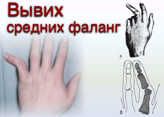 вывих пальца кисти