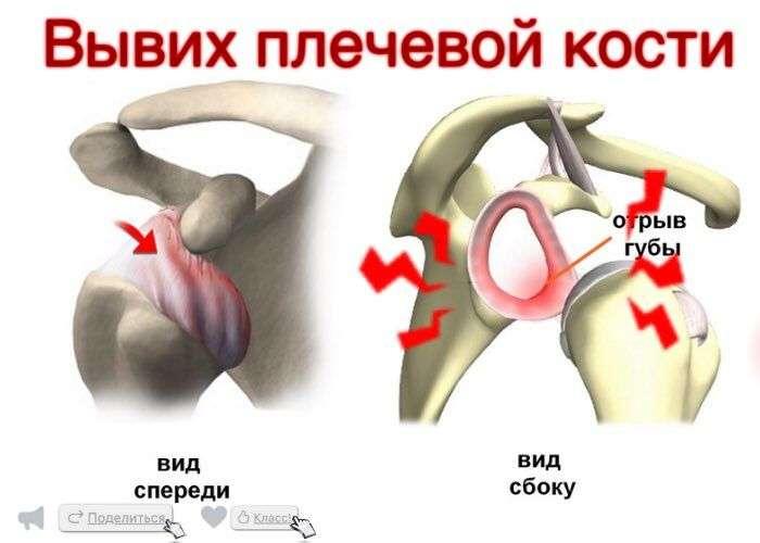 вывих плечевого сустава с отрывом