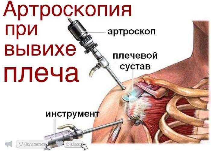 методы лечения периартрита плечевого сустава