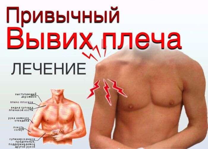 Привычный вывих плеча