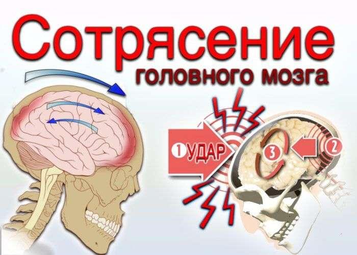 сотрясение головного мозга