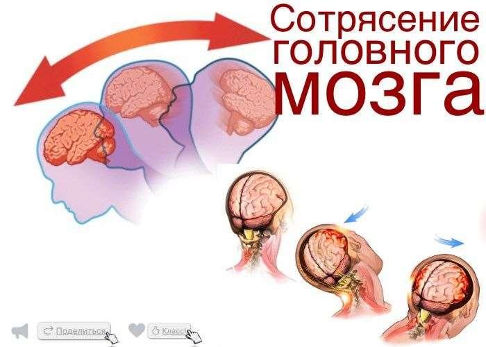 Как лечит сотрясение головного мозга в домашних условиях 227