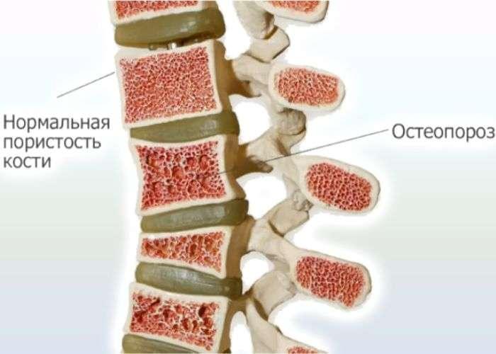 Остеопороз что это как лечить