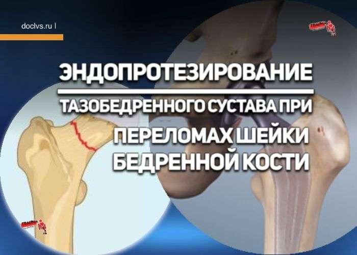 Эндопротезирование тазобедренного сустава при переломах