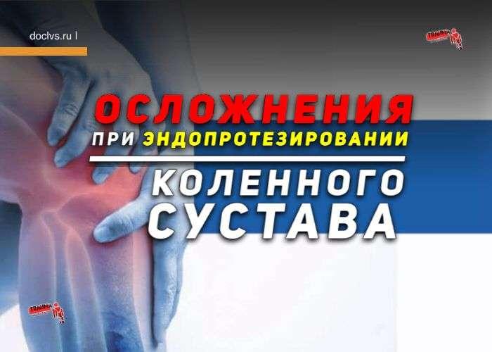 Осложнения при эндопротезировании коленного сустава