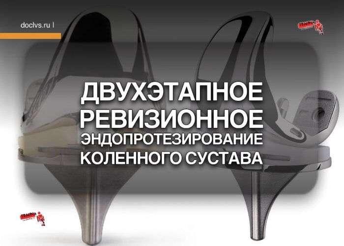 Двухэтапное ревизионное эндопротезирование коленного сустава