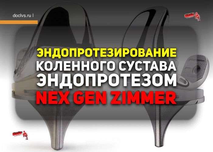 Эндопротезирование коленного сустава эндопротезом Nex Gen Zimmer