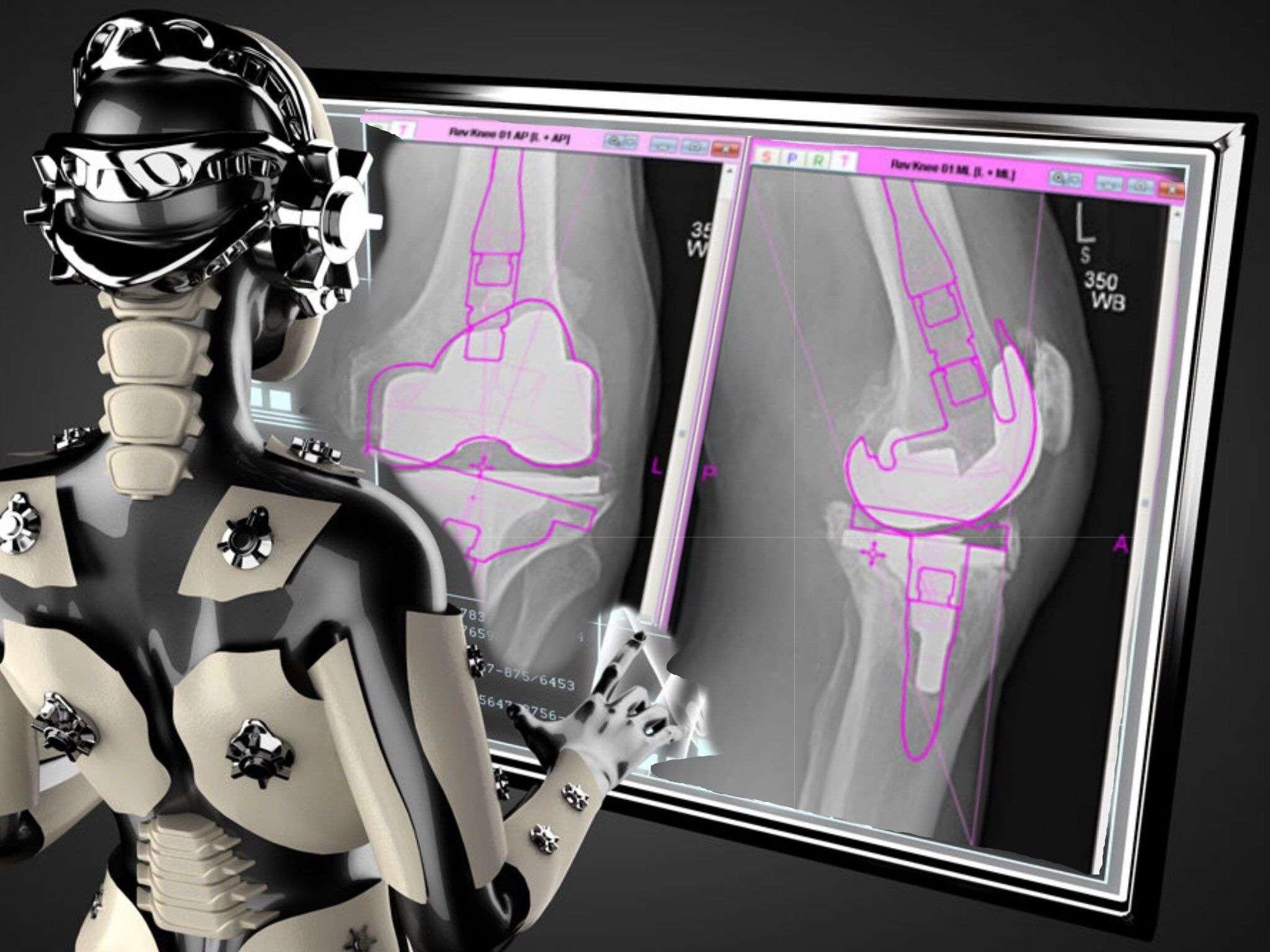 эндопротезирование ТЭП коленного сустава