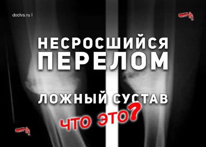 нарушение сращения кости