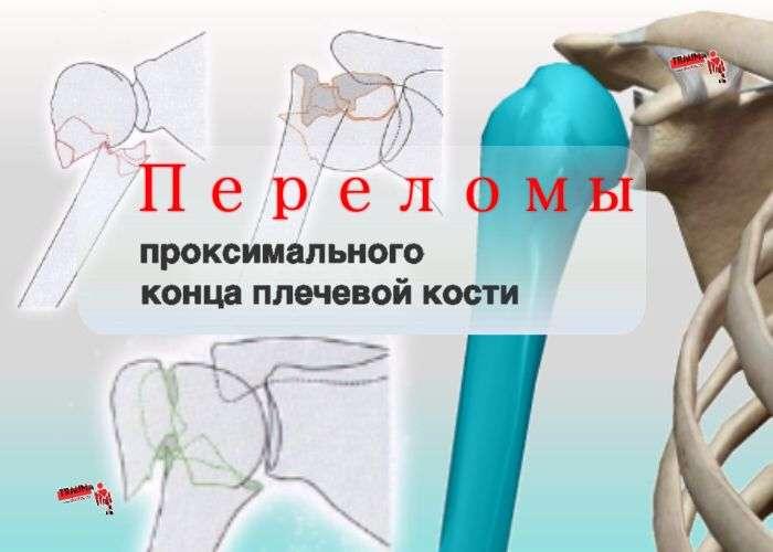 переломы проксимального отдела плечевой кости s42.2