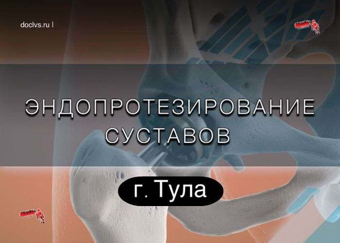 Эндопротезирование суставов г. Тула